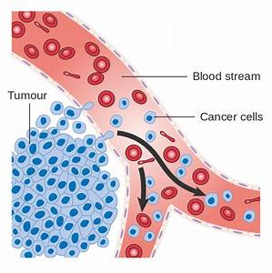 File Diagram Showing Cancer Cells Spreading Into The Blood Stream Cruk 448 Svg