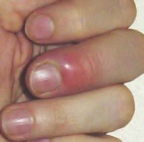 nail bed infection purple white blue damages injury causes treatment and pictures