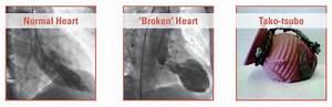 Ask an expert: ... Broken Heart Syndrome