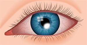 Corneal Ulcer Symptoms  Causes And Treatments