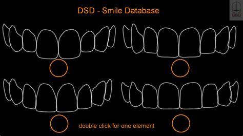 dsd digital smile design