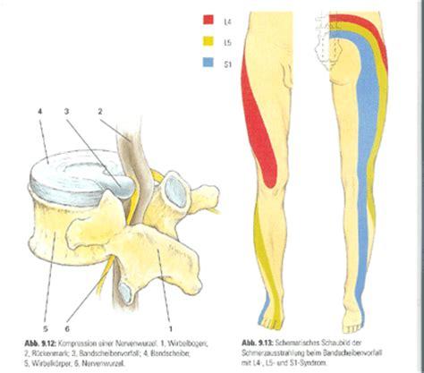 S1 bandscheibenvorfall symptome