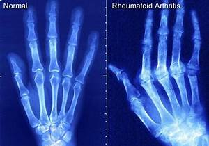 Народные средства при ревматоидном артрите отзывы