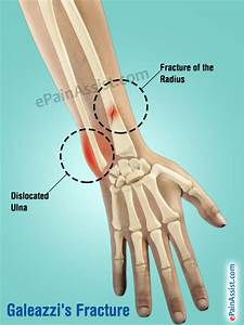 Broken Wrist: Treatment, Exercises, Causes, Symptoms, Signs