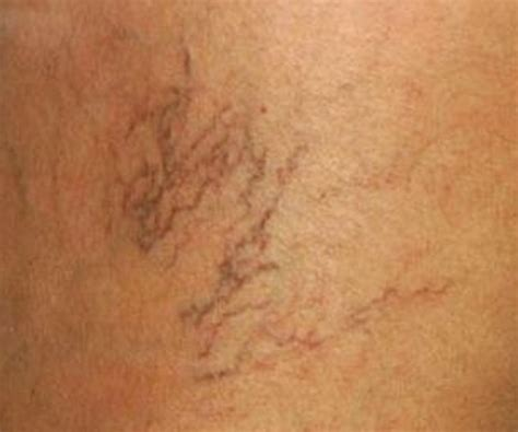 varicose veins pictures  symptoms