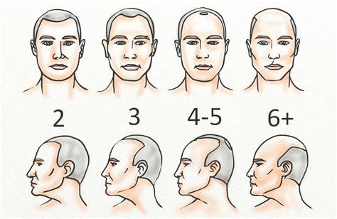 neograft    hair restoration hair loss