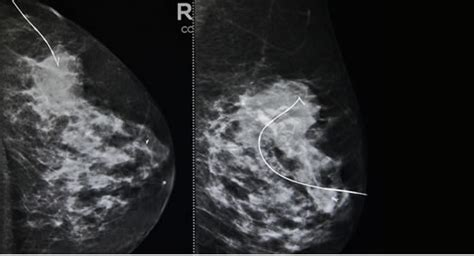 hot tub after breast biopsy breast calcification localization wire quality porn
