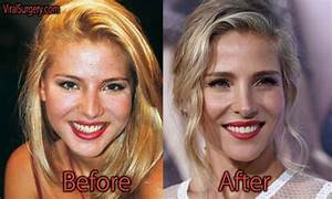 parts of eyelid elsa pataky plastic surgery before and after nose job