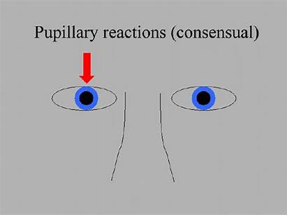 Eye Consensual Reaction Non Figure Pupillary Indirect