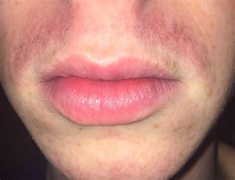 Pimples On Upper Lip After Shaving Decorativestyleorg