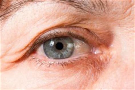 treat  eye wrinkles alexander donath md