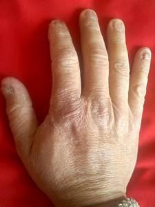 Как лечить грибок ногтей ног в домашних условиях уксусом