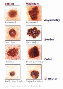 The Signs of Melanoma | Loralitzelman's Blog