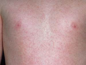 Childhood rashes and skin conditions - BabyCenter Canada