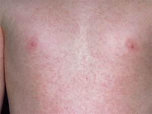 Rubella (German measles) | BabyCenter