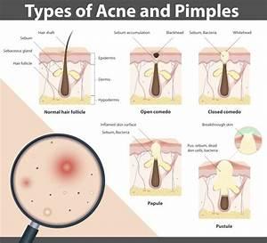 Acne-development-diagram