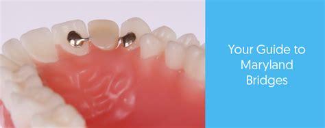 maryland bridge      dental