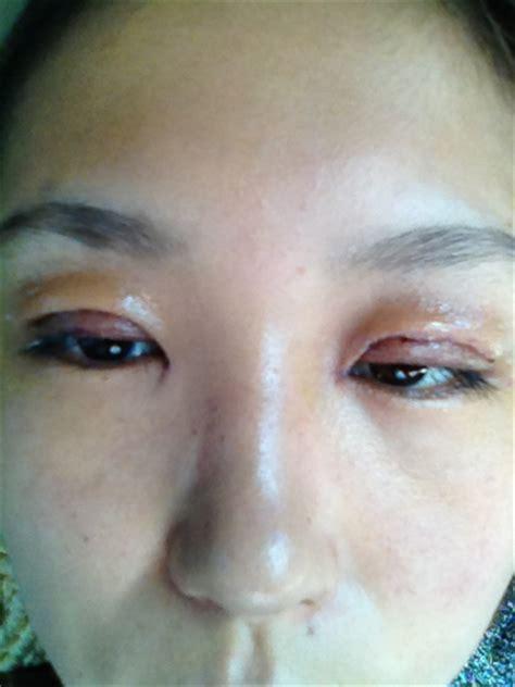 我割完双眼皮第六天了,为什么还是那么肿啊?是不是恢复不了了_百度知道