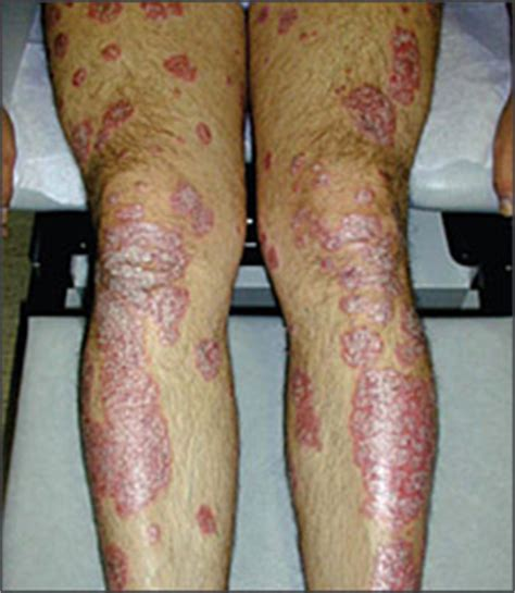 chronic plaque psoriasis american family physician