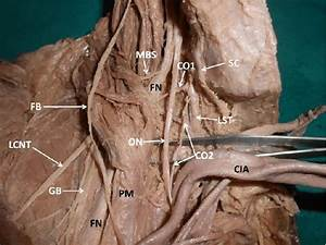 Dissection Of The Variant Branches Of Right Lumbar Plexus