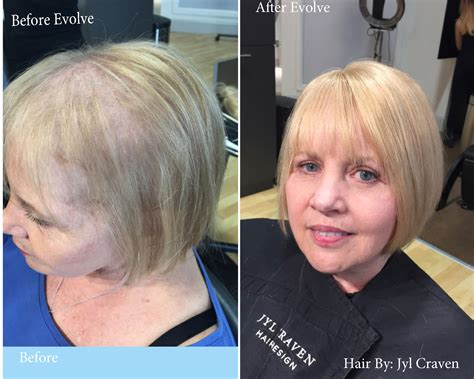 Tired Of Fine Or Thinning Hair? We Have The Solution