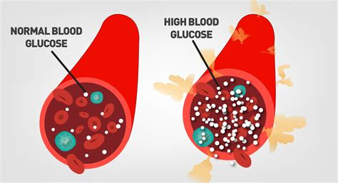 Glucose And The Eye