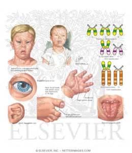 Down Symptom Syndrome Trisomy 21