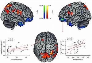 Kid Friendly Brain Diagram For Kids