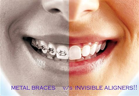 Clear Braces vs. Invisible Aligners—What's the Difference