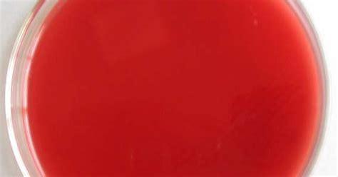 Darah Murni Blood Born media blood agar plate bap laboratory technologist