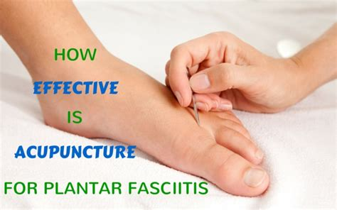 planters fasciitis treatment how effective is acupuncture for plantar fasciitis blogmilk