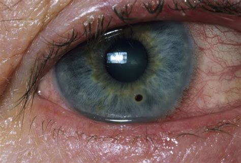what part of the eye has color homoeopathic remedies for eye affections