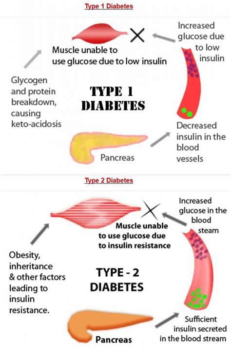 In Diabetes Mellitus What Is Type 2 Diabetes Symptoms Treatment Diet For