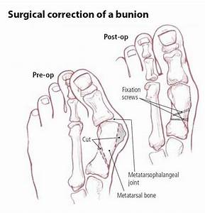 Bunion Guide  Causes  Symptoms And Treatment Options