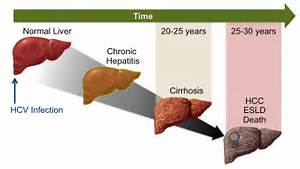 Core Concepts - Natural History of Hepatitis C Infection - Evaluation ...  Hepatitis Infections