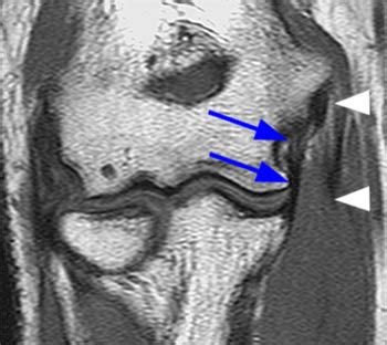 ulnar collateral ligament tears   elbow radsource