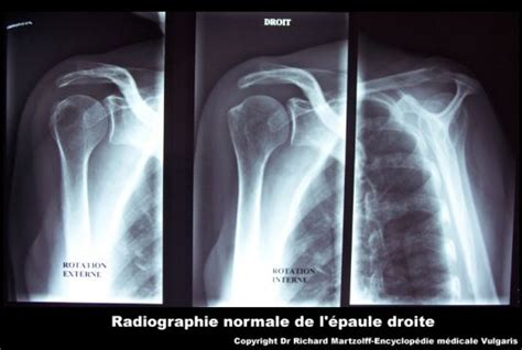 application bureau image photo épaule radiographie normale imagerie