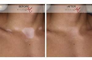 Vitiligo Treatment by MicroArt Semi Permanent Makeup