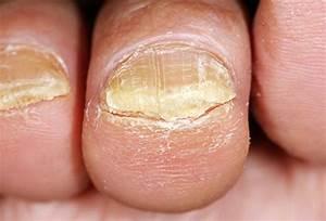 Грибок на пальце воспаление