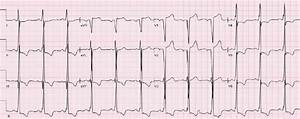Ste Secondary To Left Ventricular Hypertrophy  There Are
