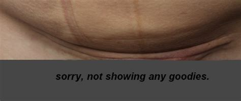 C Section Scar Recovery by C Section Scar And Recovery Pictures