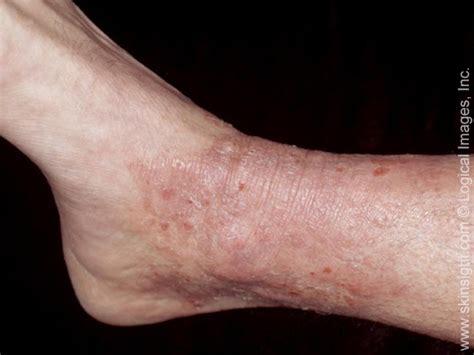 neurological dermatitis