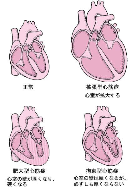 拡張 型 心筋 症