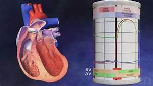 Heart Failure  Hf  - Cardiovascular Disorders