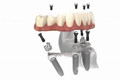 Dental Implants Cost Dentures Four كيف تتم