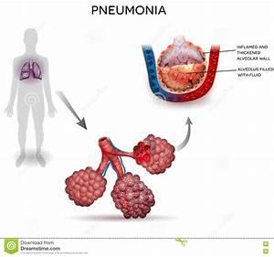 Pneumonia Cartoons  Illustrations  U0026 Vector Stock Images