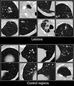 Examples Of Lung Lesions And Control Ct Image Regions