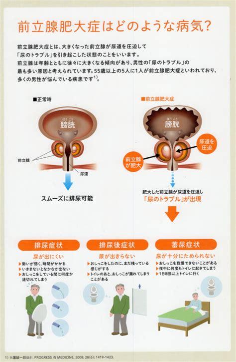 前立腺 肥大 症状