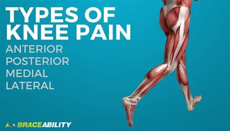 types  knee pain anterior posterior medial lateral