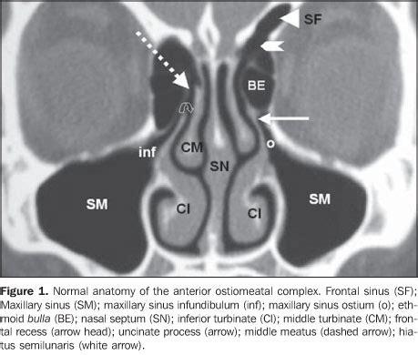 Sinus Ct Anatomy